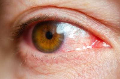 Soczewki kontaktowe a infekcje oczu